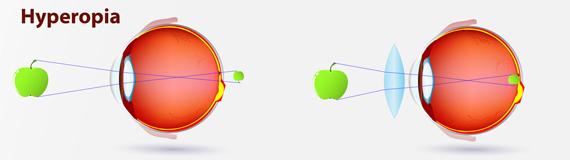 Auge Weitsichtig - Hyperop