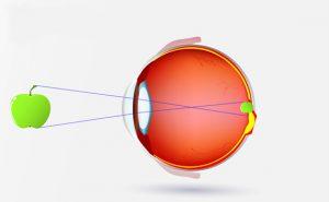 Auge Rechtsichtig